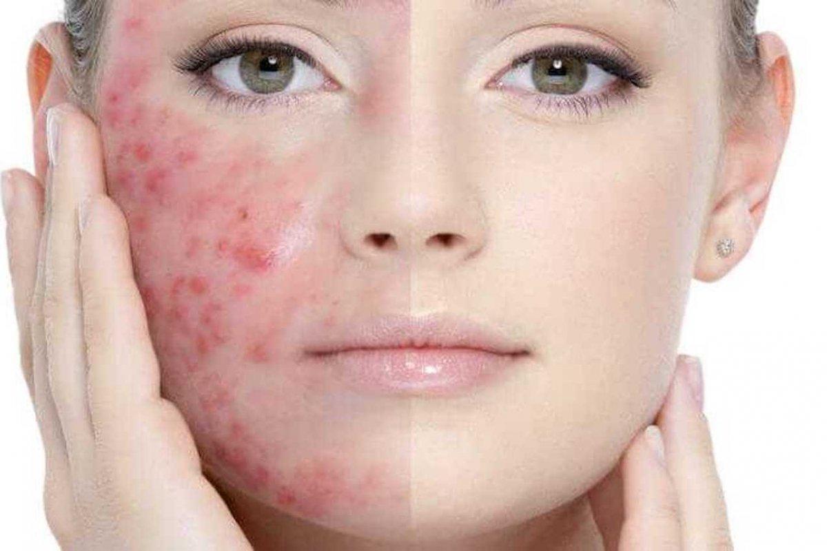 1598281102_1576100150_acne.jpg (1200×800)